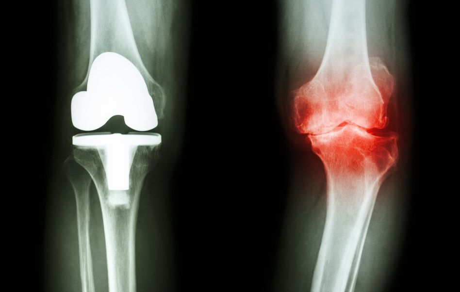 artroza genunchiului tratament de 2 grade