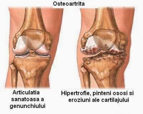 refacerea oaselor și a cartilajului