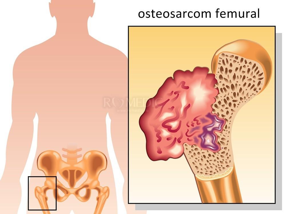 durere insuportabilă în articulația șoldului