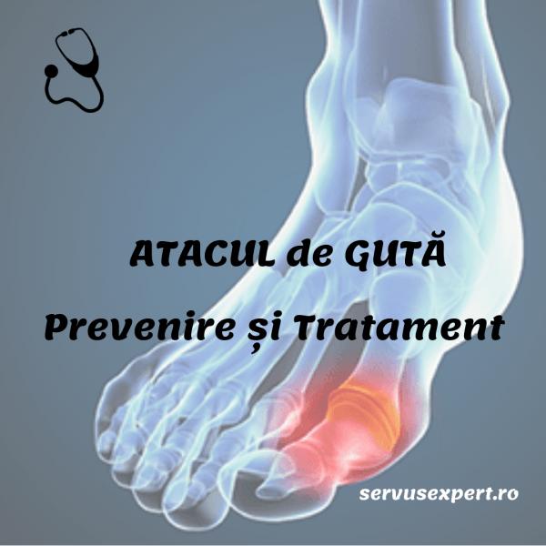 semne ale tratamentului artrozei piciorului tratamentul bursitei cronice a articulației umărului