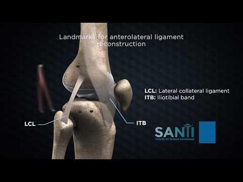 recenzii de lubrifiant pentru articulații cremă articulația pe un braț doare
