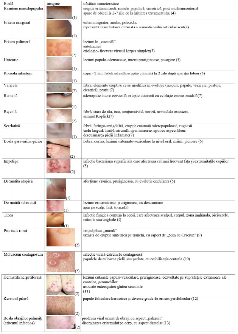 febră erupții cutanate dureri articulare nume de unguente din articulații