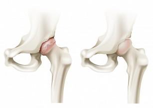pentru durere în articulațiile piciorului