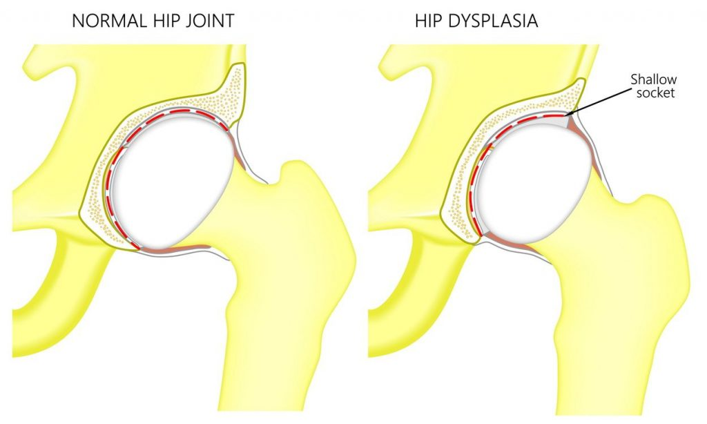tratamentul displaziei de șold la adulți boala lupusului eritematos