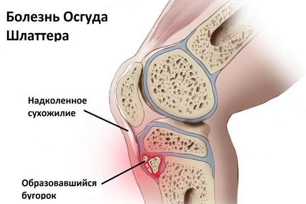 medicamente care îmbunătățesc cartilajul