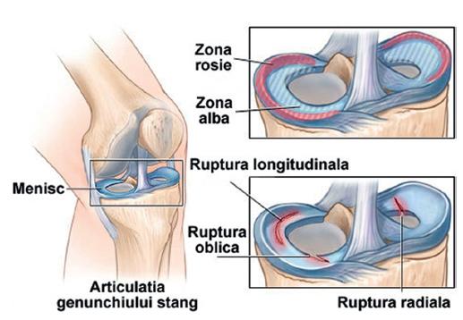 artrita articulației umărului și amorțeală tratamentul de displazie articulară