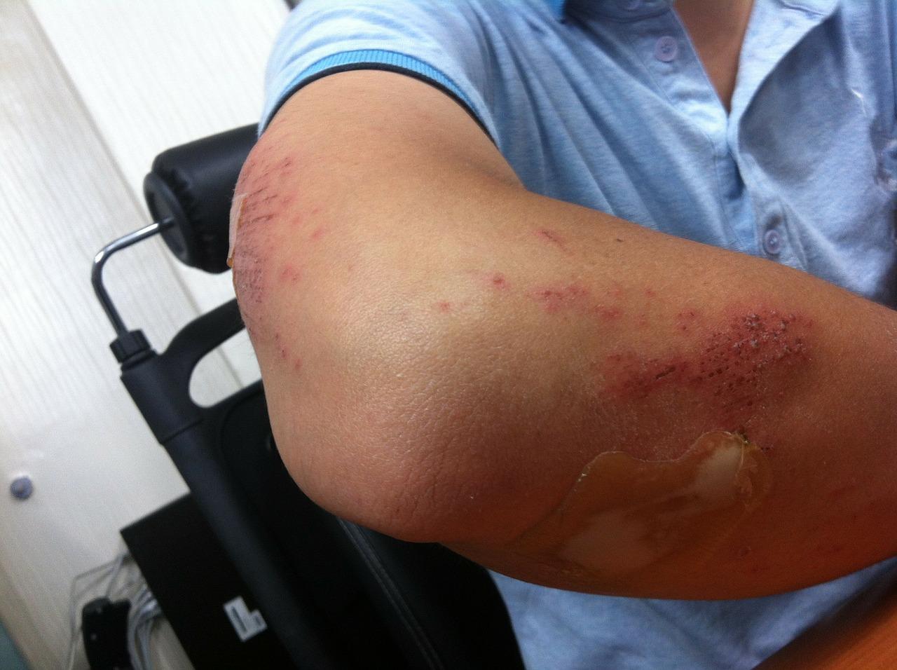 prescriptie pentru dureri de cot articulațiile brațelor umerilor doare