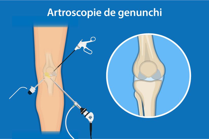 Durere în flexie și extensie a articulației genunchiului
