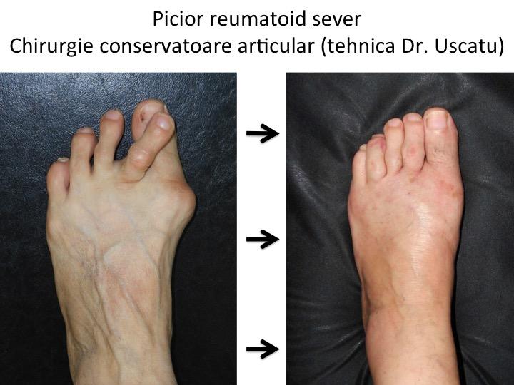 tratamentul artritei metatarsiene de ce rosturile au început să doară