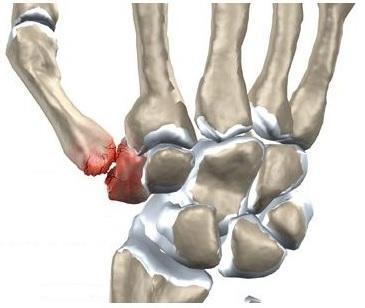 umflarea și durerea articulației încheieturii