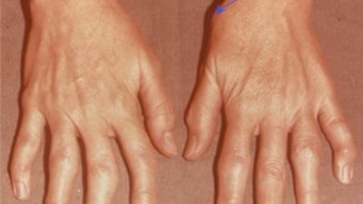 artroza simptomelor și tratamentului articulației mâinii