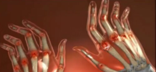articulațiile de pe braț rănite noaptea