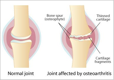 geluri de unguent pentru osteochondroză argo joint medicament