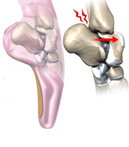 inflamația cronică a articulației gleznei