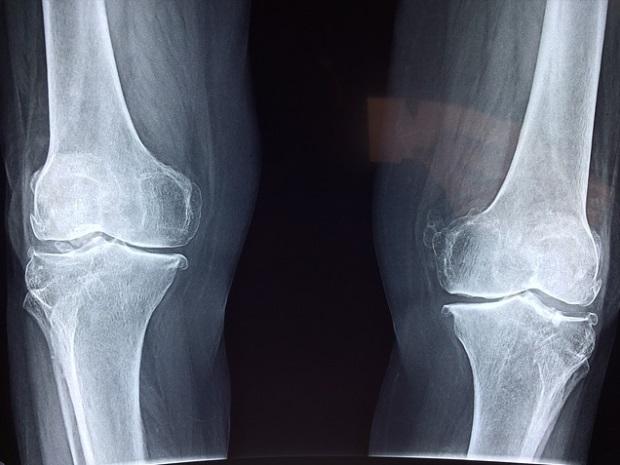 ruperea unui ligament al genunchiului dureri de articulații și crăpături