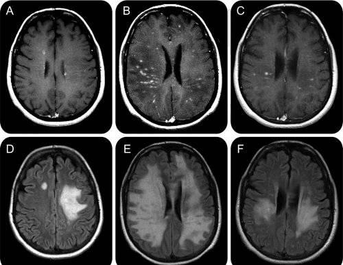 scleroză multiplă articulații dureroase