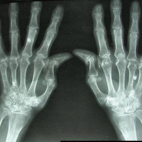 tratament spinal și articular dureri de cap dureri articulare slăbiciune