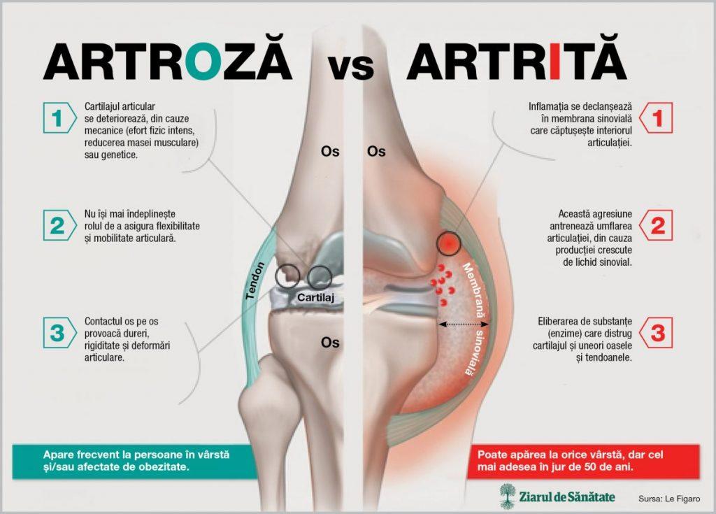 artrita artroza genunchiului decât a trata dureri articulare dureri cauzează