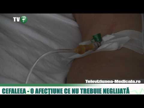 dureri articulare sistemice