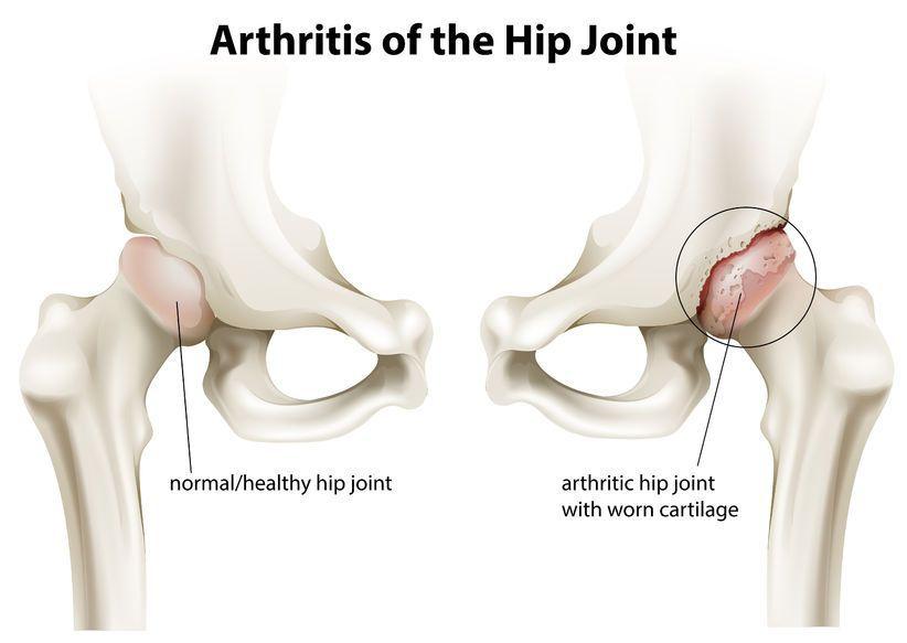 stadiul 3 artroza șoldului
