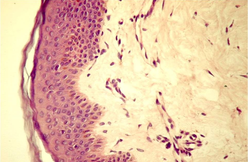 droguri de țesut conjunctiv șobolan amelioreaza durerea acuta la nivelul articulatiei cotului
