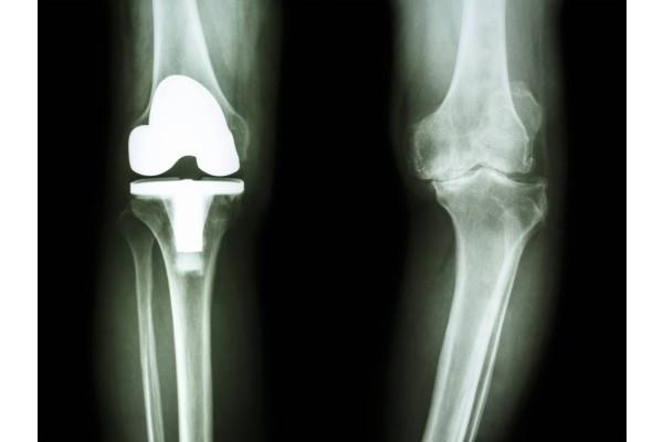artroza genunchilor și modul de tratare