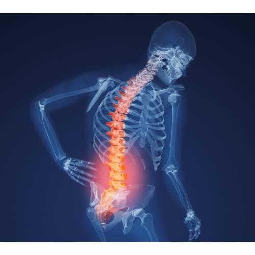 deteriorarea oaselor și articulațiilor umane ceea ce nu este posibil cu durerea articulară