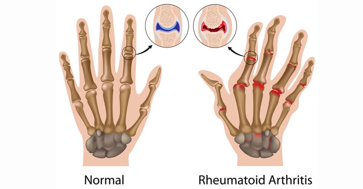 dureri articulare cu condroxid