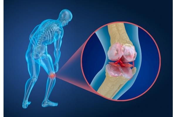 opriți artroza genunchiului cu 2 grade