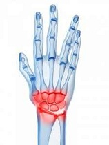 Durerea încheieturii mâinii în zona ulnară - studentscareer.ro