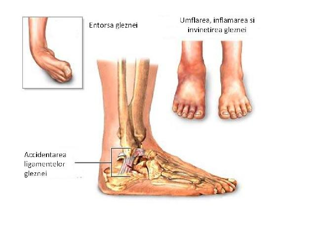 el vindecă articulațiile care este piciorul este amorțit și articulația doare