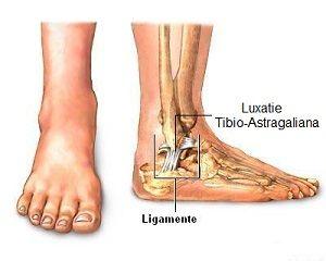 artrita soiurilor articulațiilor genunchiului