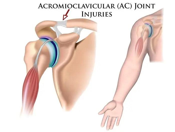 cum tratează chihlimbarul articulațiilor tratamentul articular conform Evdokimov