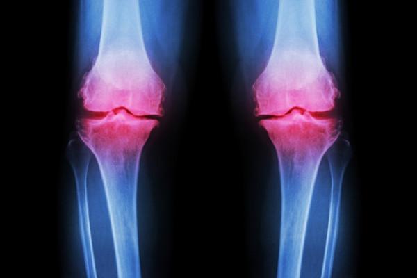 gonartroza genunchiului tratamentului de gradul doi pastile pentru tratamentul artrozei umerilor recenzii