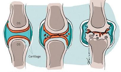 dureri la genunchi după răni vechi