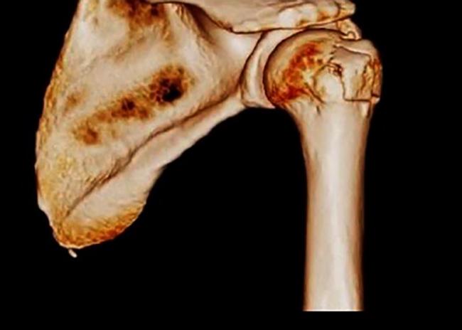 cauzele durerii nocturne la nivelul articulațiilor tot despre bolile articulare