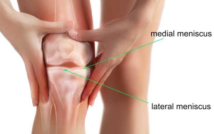 artroza genunchiului pentru a reduce durerea ruperea capsulei tratamentului articulației cotului