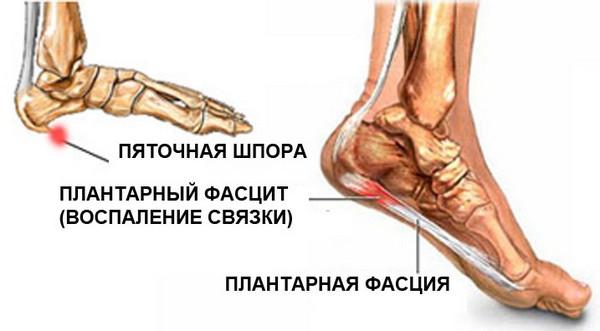 boli purulente ale oaselor și articulațiilor chirurgie generală cauza durerii de cot și tratament