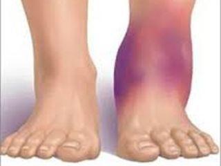 dureri de gleznă cu reumatism