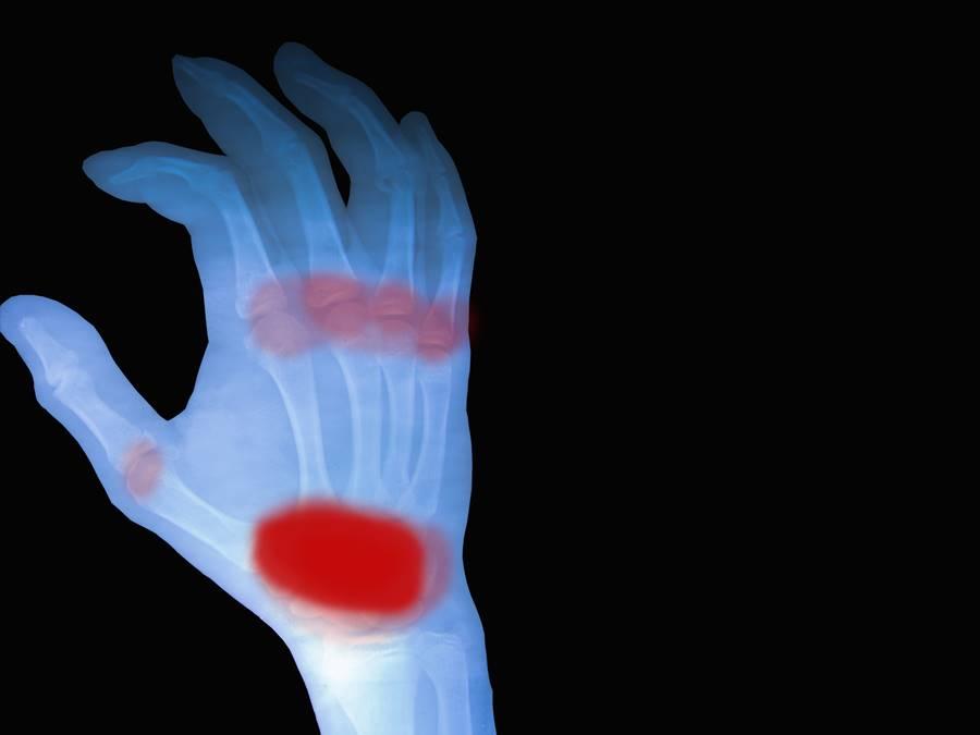 tratament poliartrita reumatoida seronegativa
