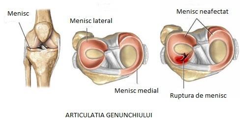 titlul de pastile de durere articulare articulațiile sternului doare