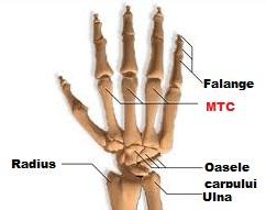 cum să tratezi o articulație dislocată a degetului tratamentul cartilajelor și articulațiilor