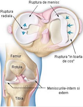 la camera de urgență cu dureri articulare dispozitive pentru tratamentul artrozei piciorului