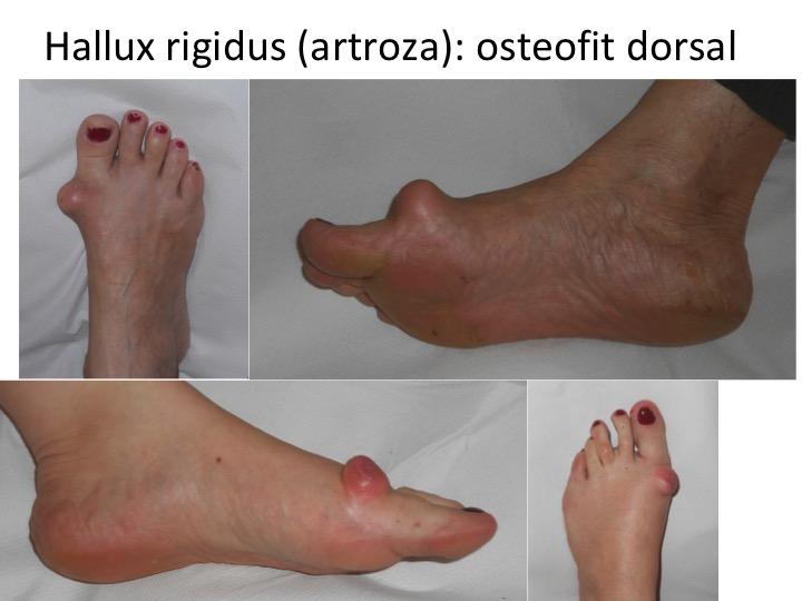 tratamentul edemului artrozei piciorului tratamentul termic al artrozei la genunchi