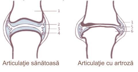 măcinări din artroza articulației șoldului medicament care conține glucozamină și condroitină
