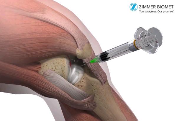 proceduri pentru tratamentul artrozei genunchiului Medicamente care tratează artroza
