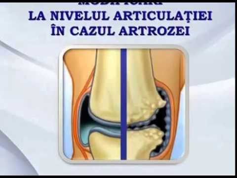 Supramax te scapa de durerile articulare! - Tratament articular cu elecampane