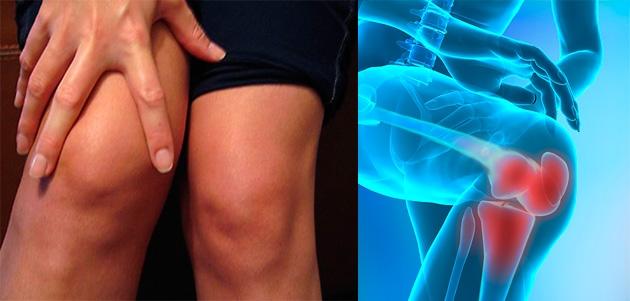 leziune la genunchiul drept proeminență și dureri articulare