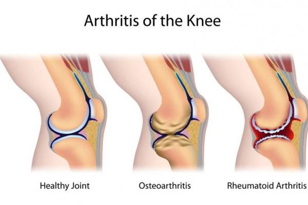 artroza articulației ce este articulații crunch osteochondrosis