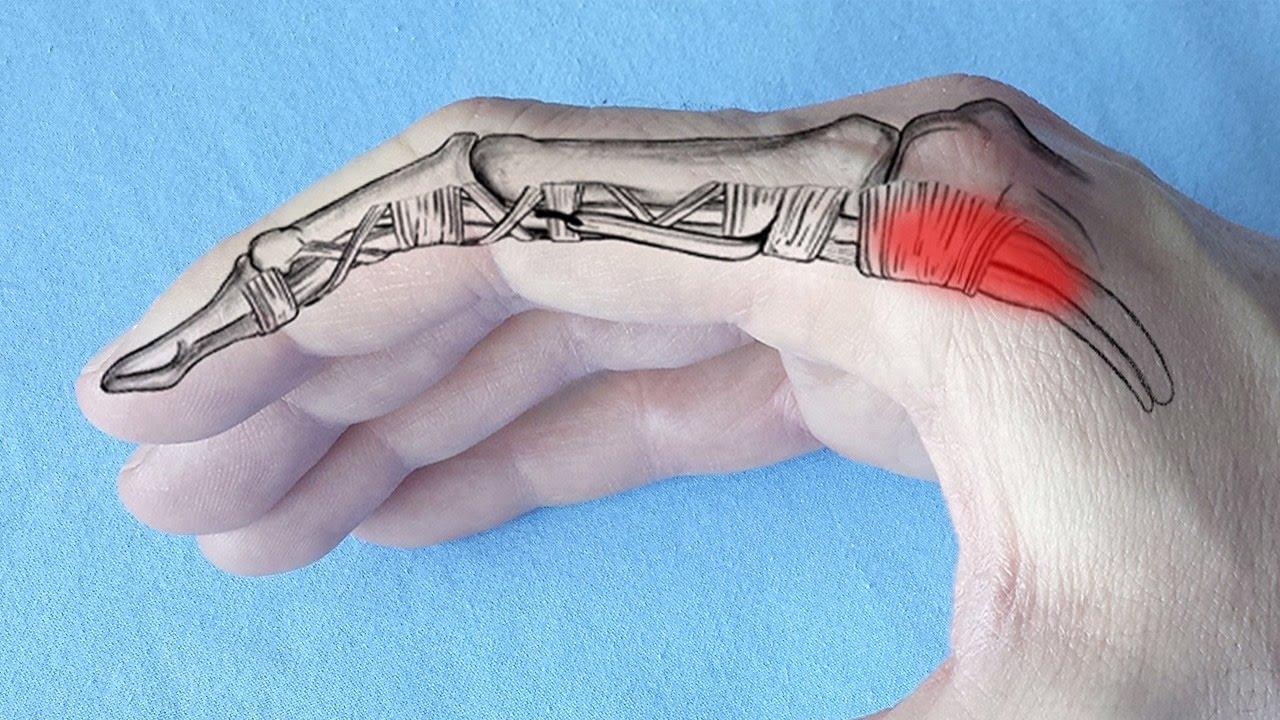 dureri ascuțite articulația degetelor de la picioare boala articulațiilor cotului